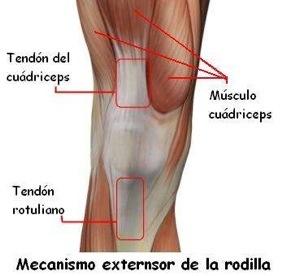 tendinitis de rodilla