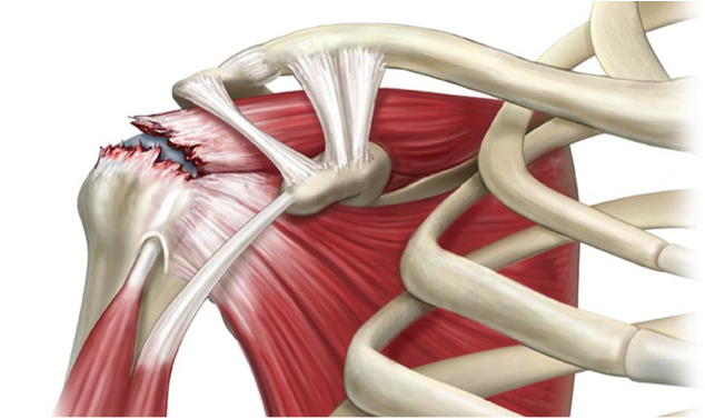 Tendinitis de manguito de rotadores del hombro | Enrique García ...
