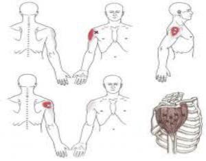 Bursitis de hombro vs puntos gatillo del deltoides