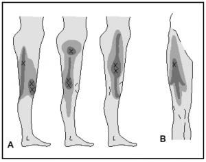 Iliotibial vs puntos gatillo del vasto externo y la cintilla iliotibial