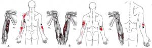 Epicondilitis vs puntos gatillo del tríceps