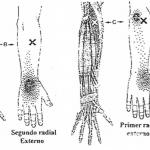 Epicondilitis, epitrocleitis y tendinitis de muñeca vs puntos gatillo de los músculos del antebrazo