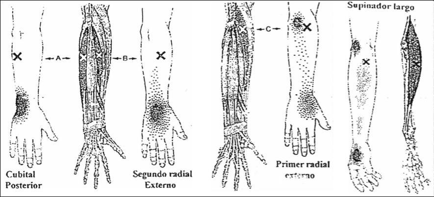 Epicondilitis, epitrocleitis y tendinitis de muñeca vs puntos ...