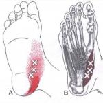 Fascitis plantar vs Punto gatillo del primer dedo