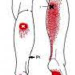 Fascitis plantar vs puntos gatillo del gemelo interno y del gemelo externo