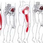 Síndrome de cintilla iliotibial vs puntos gatillo del glúteo medio