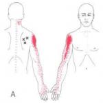Tendinitis del manguito de los rotadores vs puntos gatillo del Infraespinoso