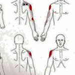 Tendinitis del Supraespinoso vs Puntos gatillo del Suprespinoso