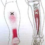 Tendinitis de tendón de Aquiles vs punto gatillo de tibial posterior