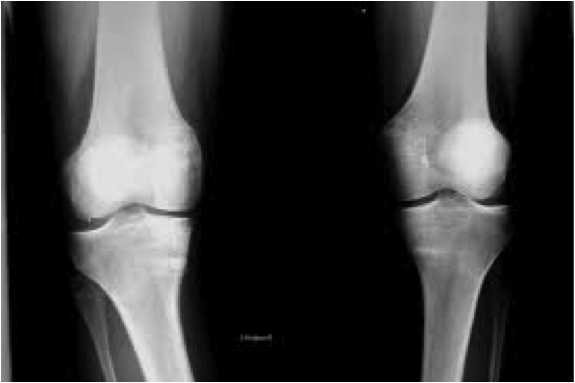 Esguince de ligamentos laterales de rodilla