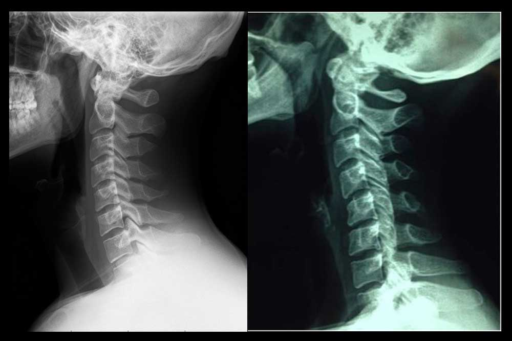 Lordosis cervical y rectificación cervical