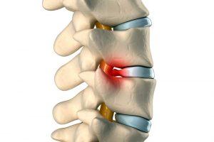 Diagnóstico y tratamiendo de la hernia discal