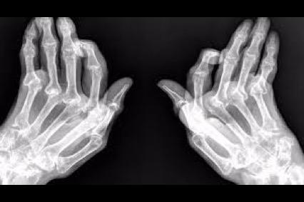 Dolor artritis