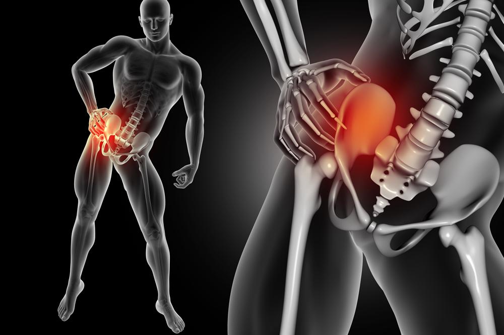 La artrosis y su tratamiento con fisioterapia